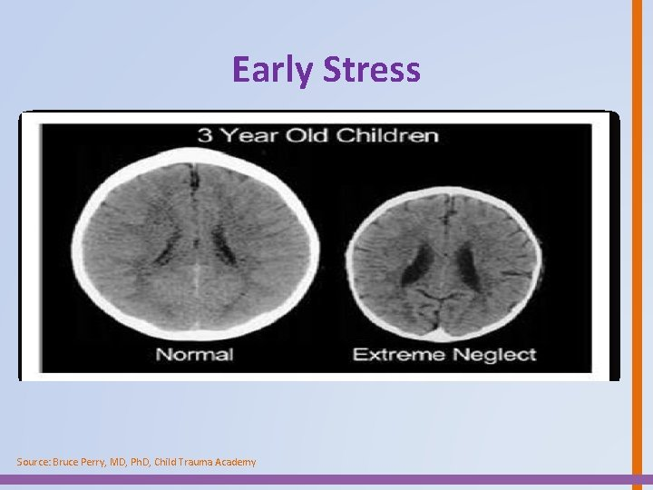 Early Stress Source: Bruce Perry, MD, Ph. D, Child Trauma Academy