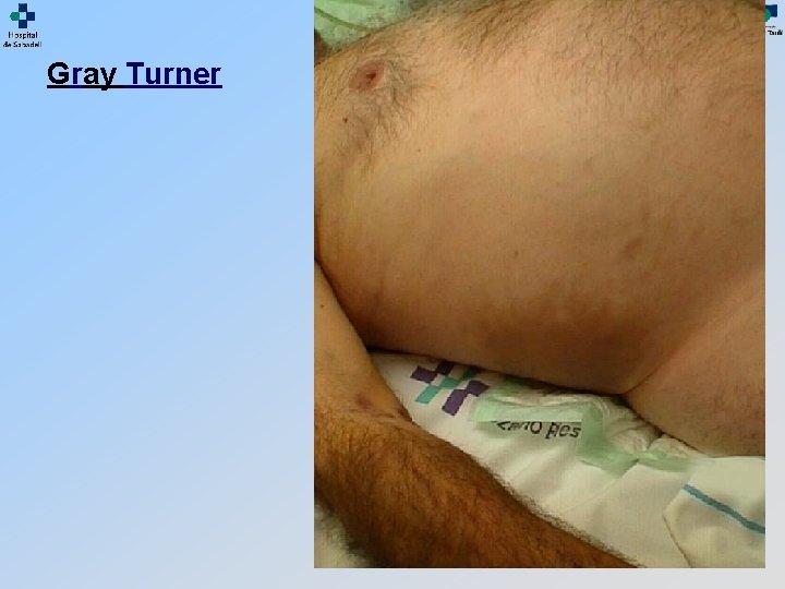 Gray Turner
