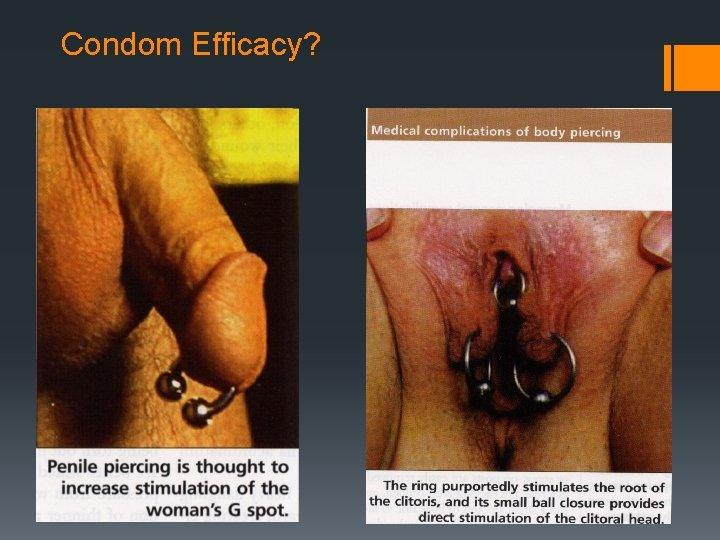Condom Efficacy?