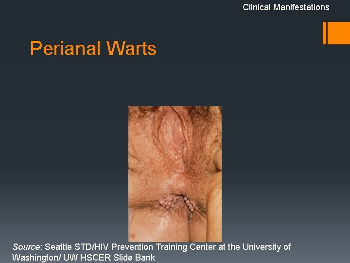 Clinical Manifestations Perianal Warts Source: Seattle STD/HIV Prevention Training Center at the University of