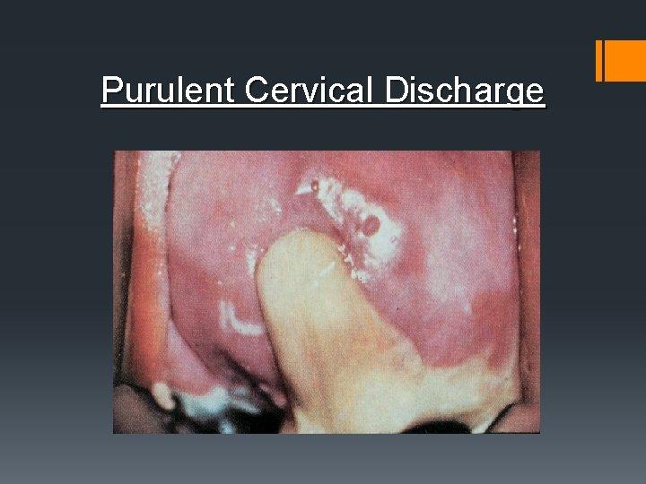 Purulent Cervical Discharge