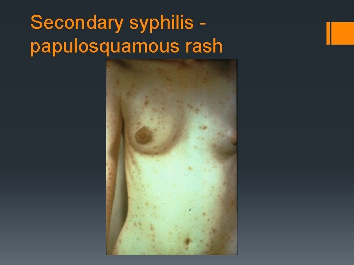 Secondary syphilis papulosquamous rash