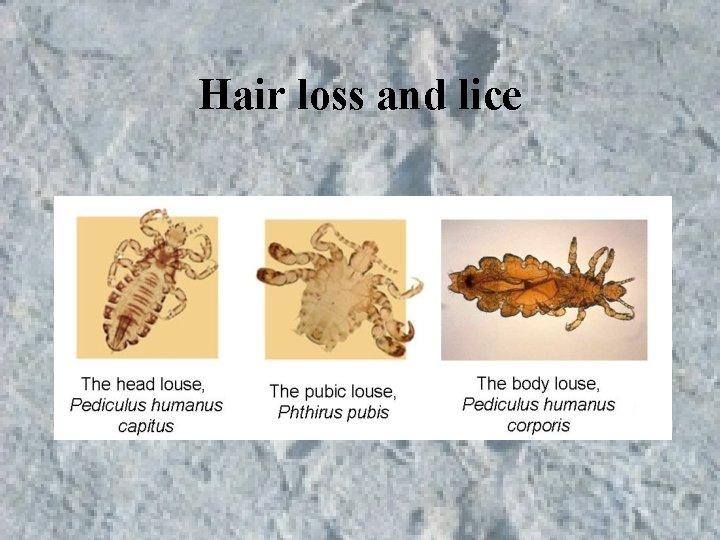 Hair loss and lice