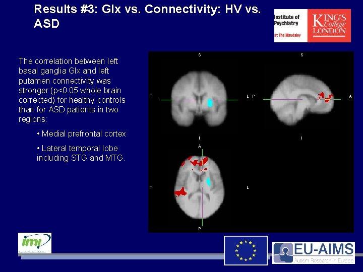 Results #3: Glx vs. Connectivity: HV vs. ASD The correlation between left basal ganglia