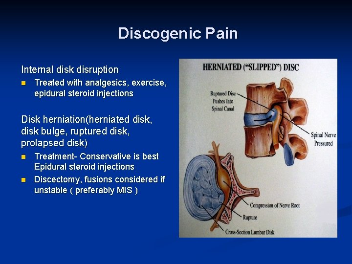 Discogenic Pain Internal disk disruption n Treated with analgesics, exercise, epidural steroid injections Disk