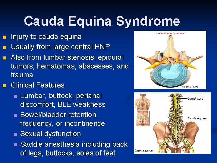Cauda Equina Syndrome n n Injury to cauda equina Usually from large central HNP