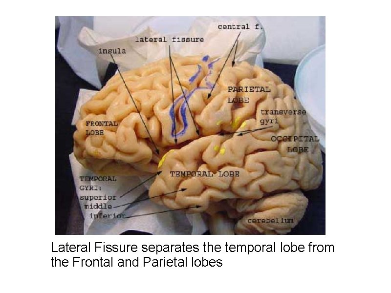 Lateral Fissure separates the temporal lobe from the Frontal and Parietal lobes