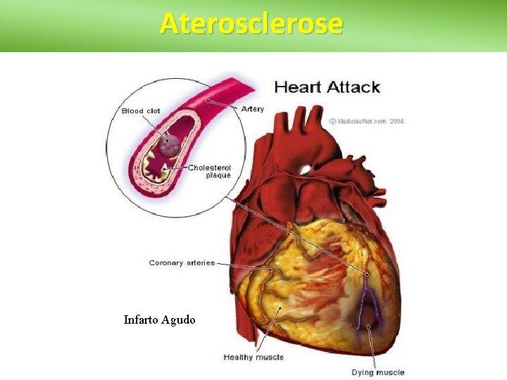 Aterosclerose Infarto Agudo