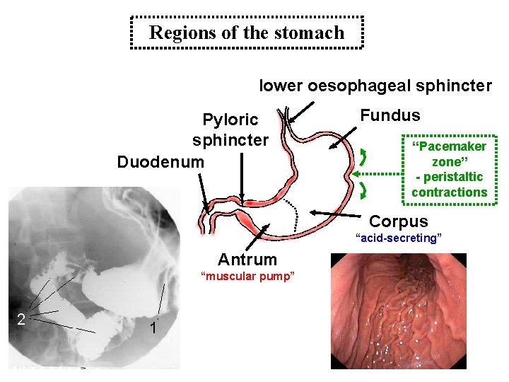 """Regions of the stomach lower oesophageal sphincter Pyloric sphincter Duodenum Fundus """"Pacemaker zone"""" -"""