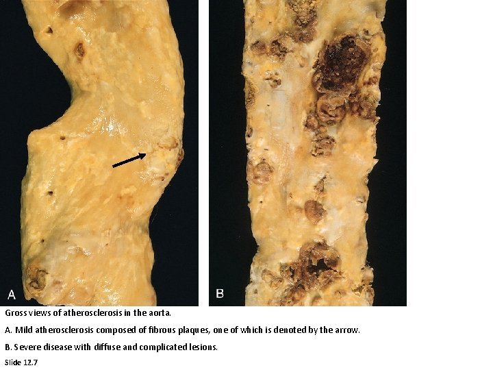 Gross views of atherosclerosis in the aorta. A. Mild atherosclerosis composed of fibrous plaques,