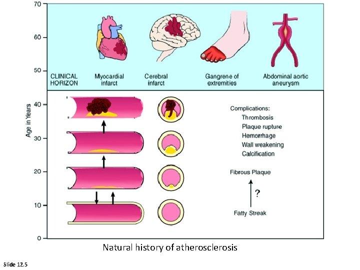 Natural history of atherosclerosis Slide 12. 5