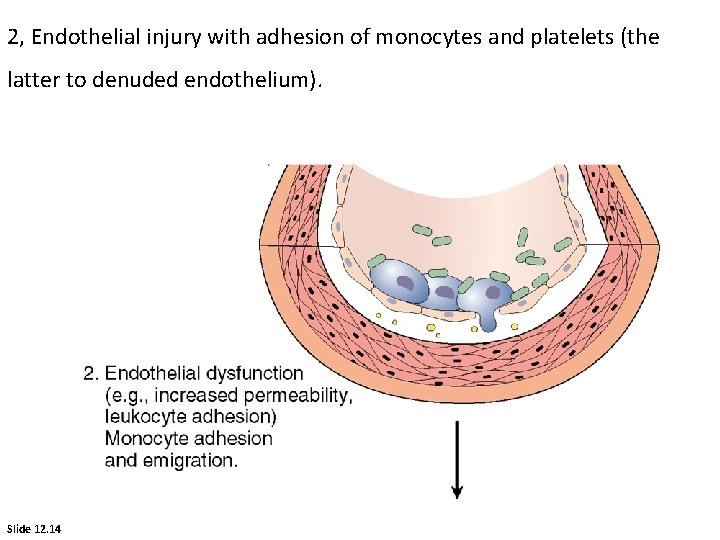 2, Endothelial injury with adhesion of monocytes and platelets (the latter to denuded endothelium).