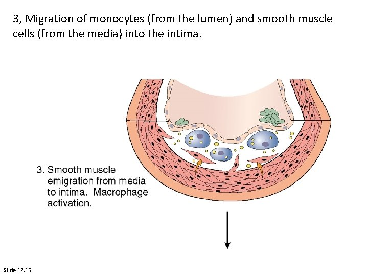 3, Migration of monocytes (from the lumen) and smooth muscle cells (from the media)