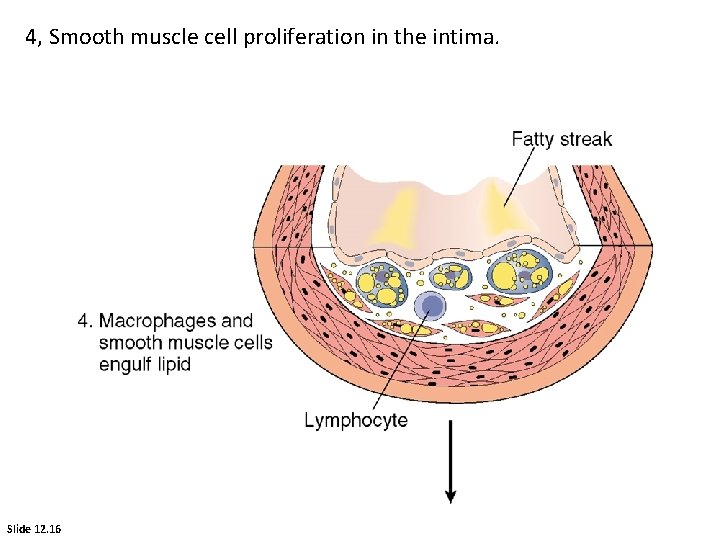 4, Smooth muscle cell proliferation in the intima. Slide 12. 16