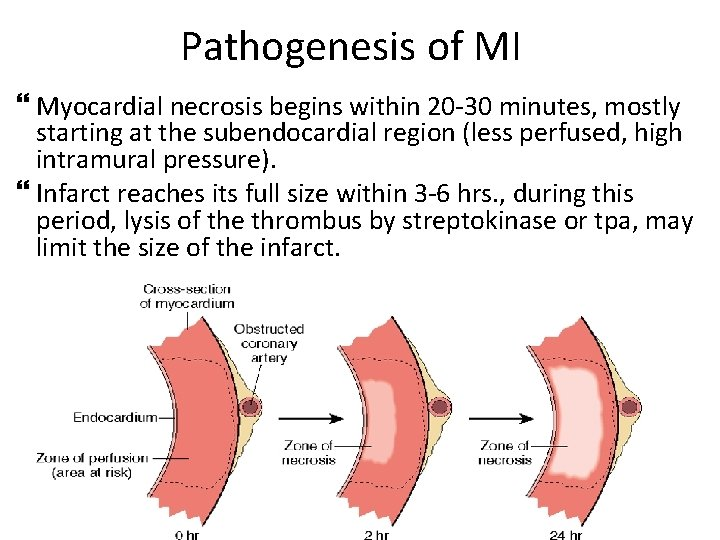 Pathogenesis of MI Myocardial necrosis begins within 20 -30 minutes, mostly starting at the