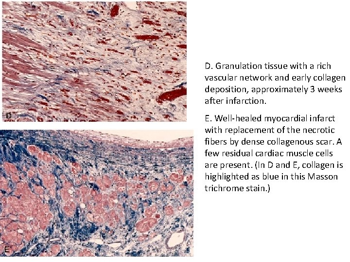 D. Granulation tissue with a rich vascular network and early collagen deposition, approximately 3