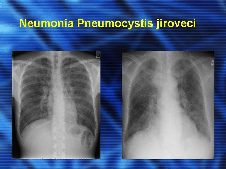Neumonía Pneumocystis jiroveci
