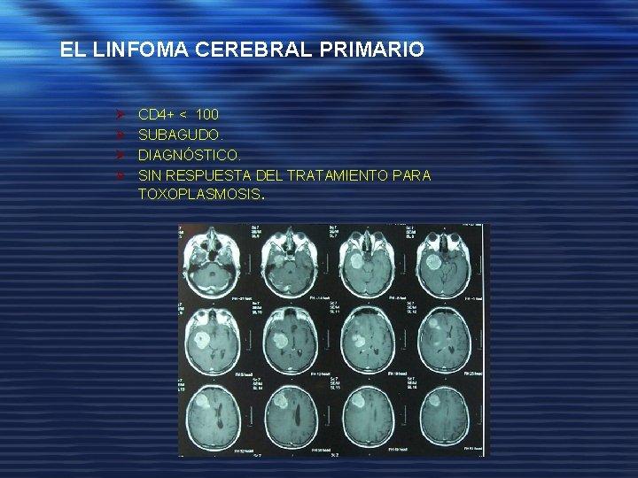 EL LINFOMA CEREBRAL PRIMARIO Ø Ø CD 4+ < 100 SUBAGUDO. DIAGNÓSTICO. SIN RESPUESTA