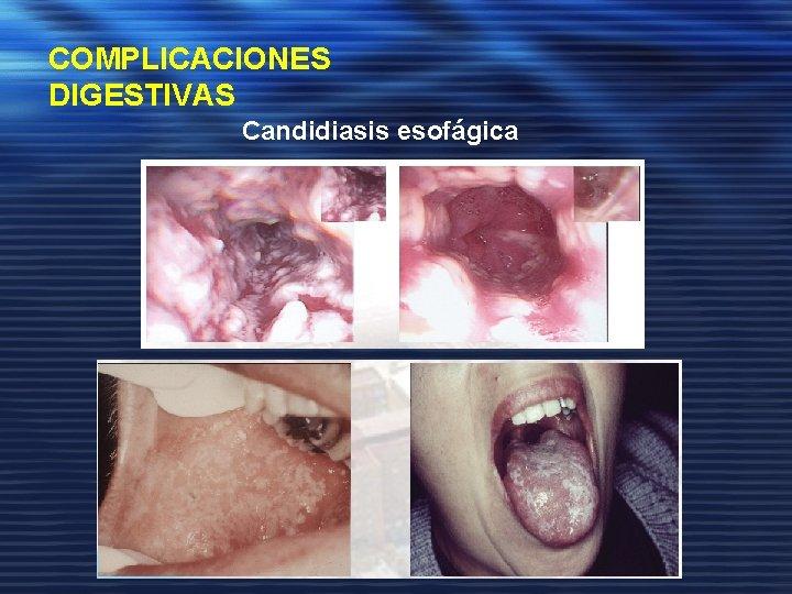 COMPLICACIONES DIGESTIVAS Candidiasis esofágica Candidiasis oral
