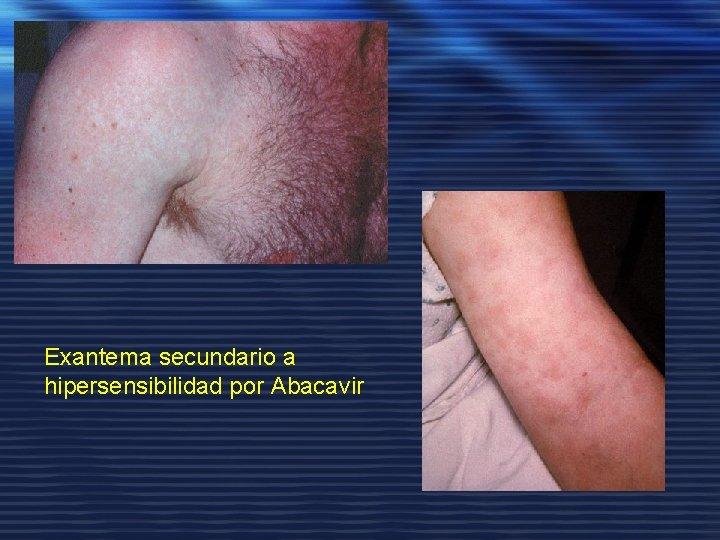 Exantema secundario a hipersensibilidad por Abacavir