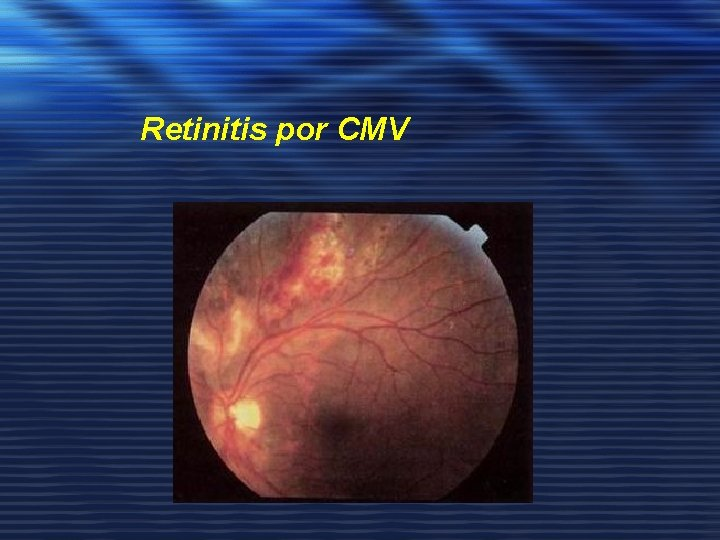 Retinitis por CMV