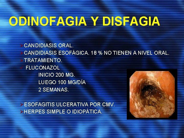 ODINOFAGIA Y DISFAGIA ØCANDIDIASIS ORAL. ØCANDIDIASIS ESOFÁGICA. 18 % NO TIENEN A NIVEL ORAL.