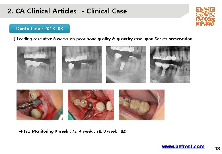 2. CA Clinical Articles - Clinical Case Denfo-Line : 2013. 03 1) Loading case