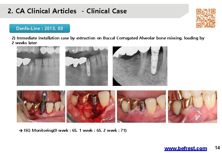 2. CA Clinical Articles - Clinical Case Denfo-Line : 2013. 03 2) Immediate installation