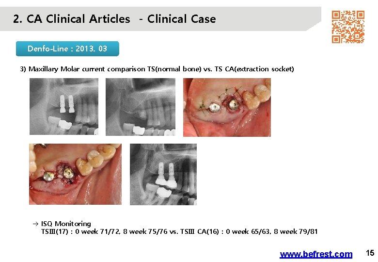 2. CA Clinical Articles - Clinical Case Denfo-Line : 2013. 03 3) Maxillary Molar