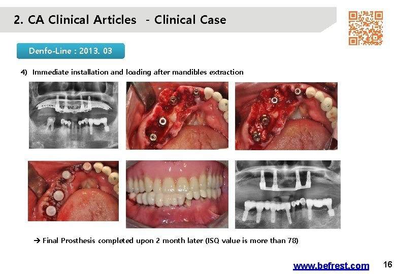 2. CA Clinical Articles - Clinical Case Denfo-Line : 2013. 03 4) Immediate installation