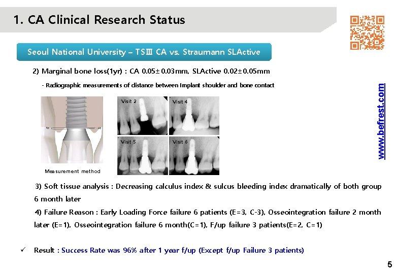 1. CA Clinical Research Status Seoul National University – TSⅢ CA vs. Straumann SLActive