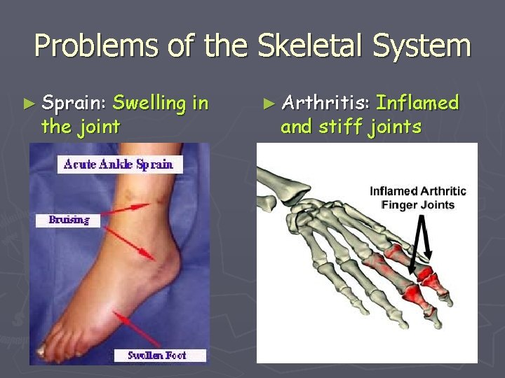 Problems of the Skeletal System ► Sprain: Swelling in the joint ► Arthritis: Inflamed