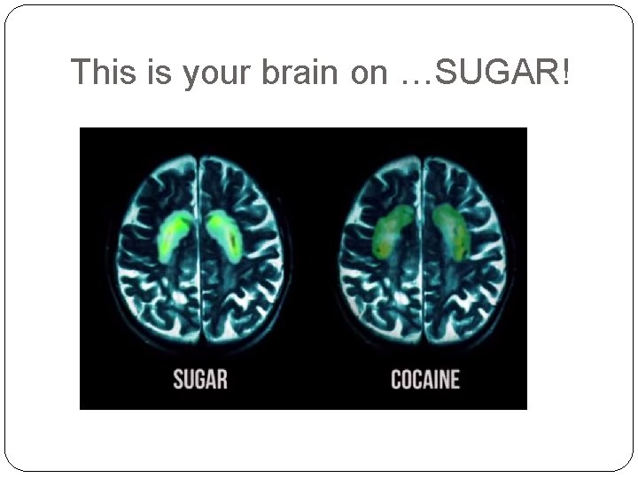 This is your brain on …SUGAR!
