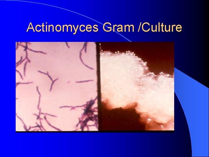Actinomyces Gram /Culture