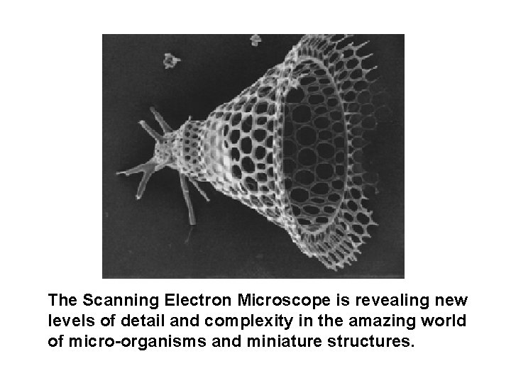 The Scanning Electron Microscope is revealing new levels of detail and complexity in the