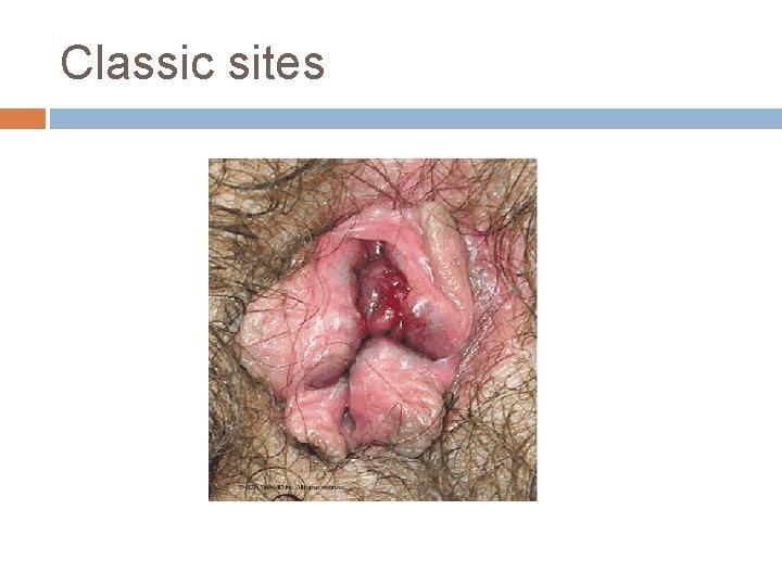 Classic sites