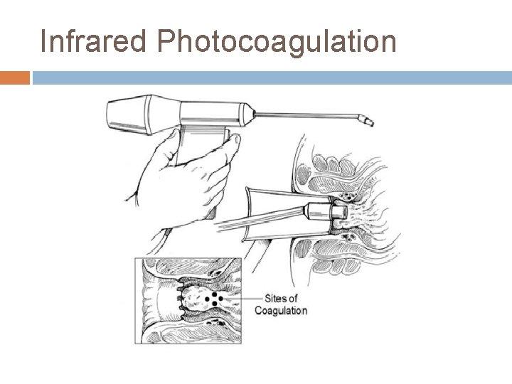 Infrared Photocoagulation
