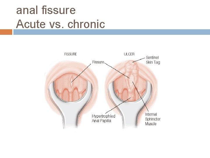 anal fissure Acute vs. chronic