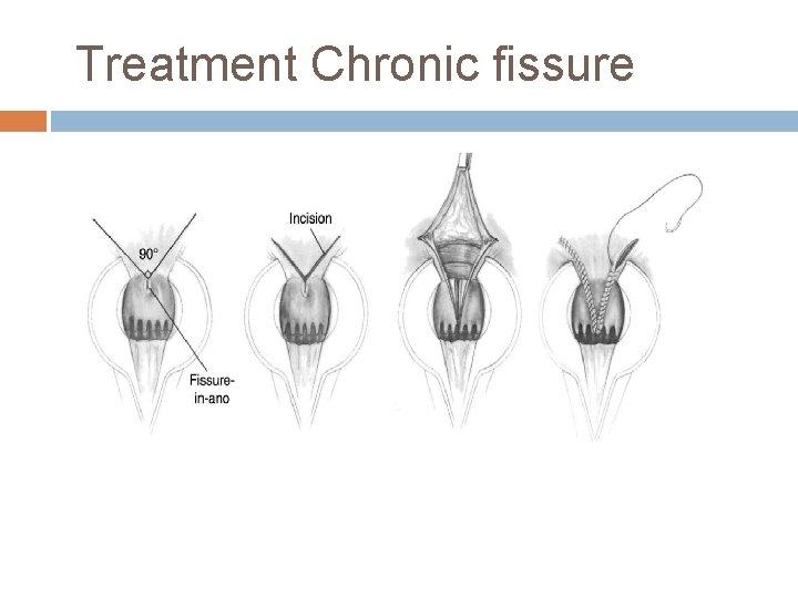 Treatment Chronic fissure