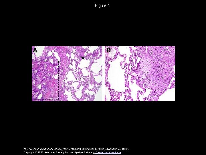 Figure 1 The American Journal of Pathology 2016 1862310 -2316 DOI: (10. 1016/j. ajpath.