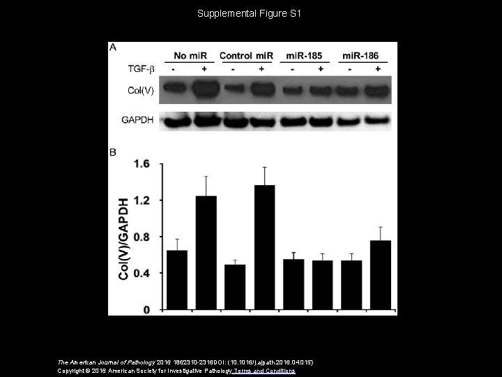 Supplemental Figure S 1 The American Journal of Pathology 2016 1862310 -2316 DOI: (10.