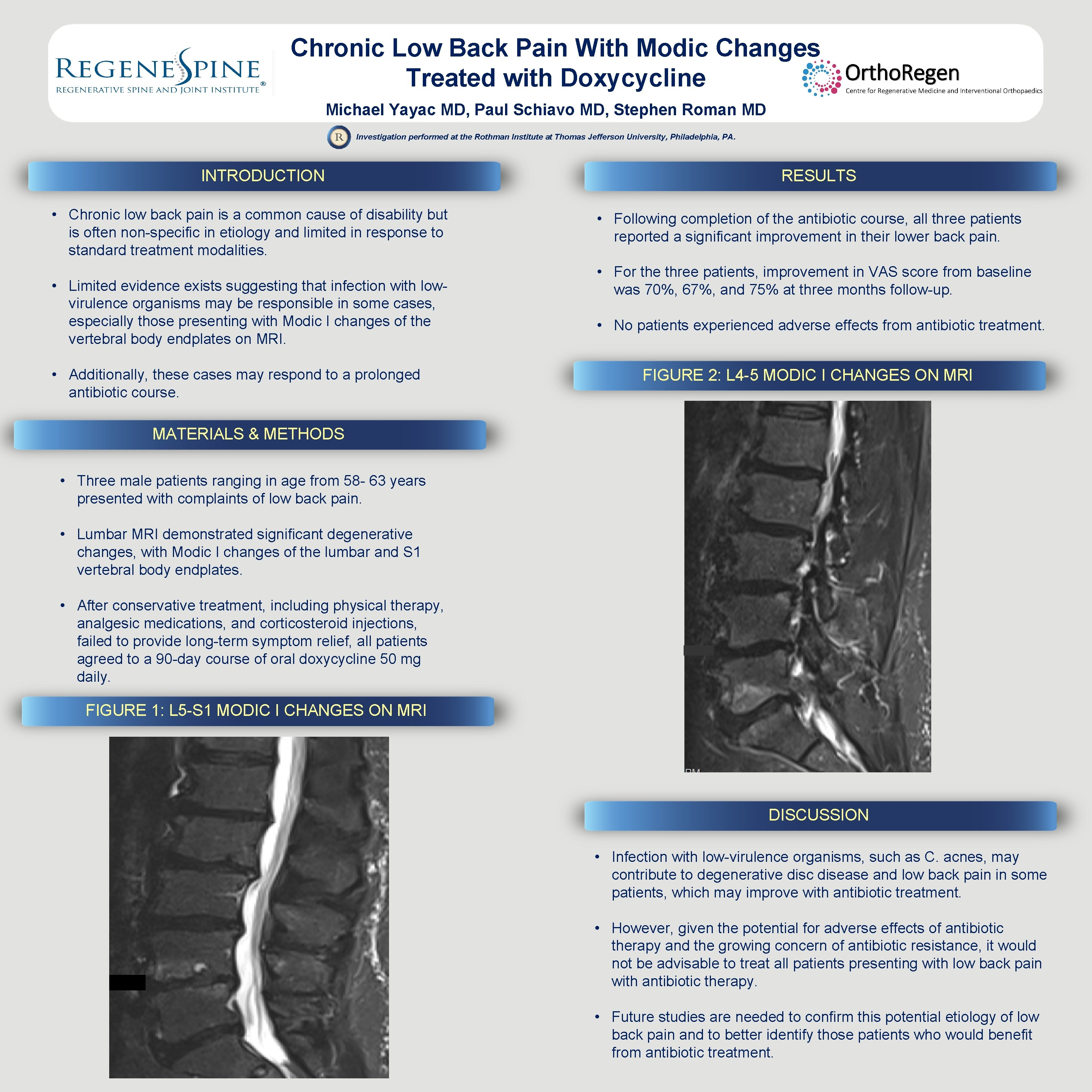 Chronic Low Back Pain With Modic Changes Treated with Doxycycline Michael Yayac MD, Paul