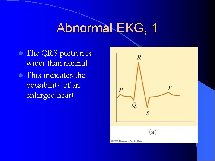 Abnormal EKG, 1 The QRS portion is wider than normal l This indicates the