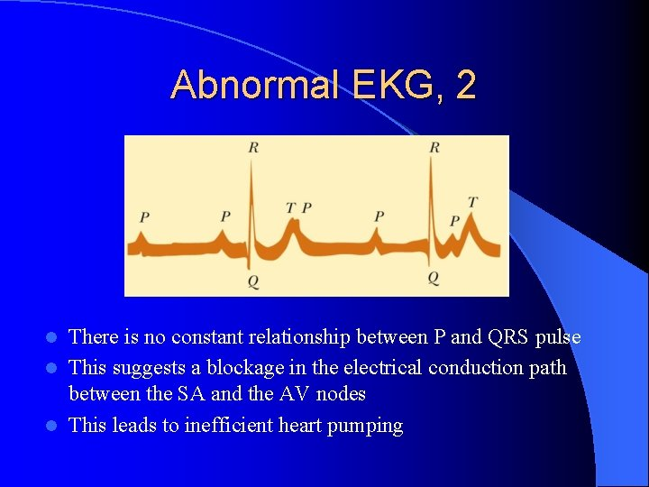 Abnormal EKG, 2 There is no constant relationship between P and QRS pulse l
