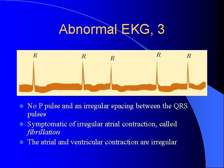 Abnormal EKG, 3 No P pulse and an irregular spacing between the QRS pulses