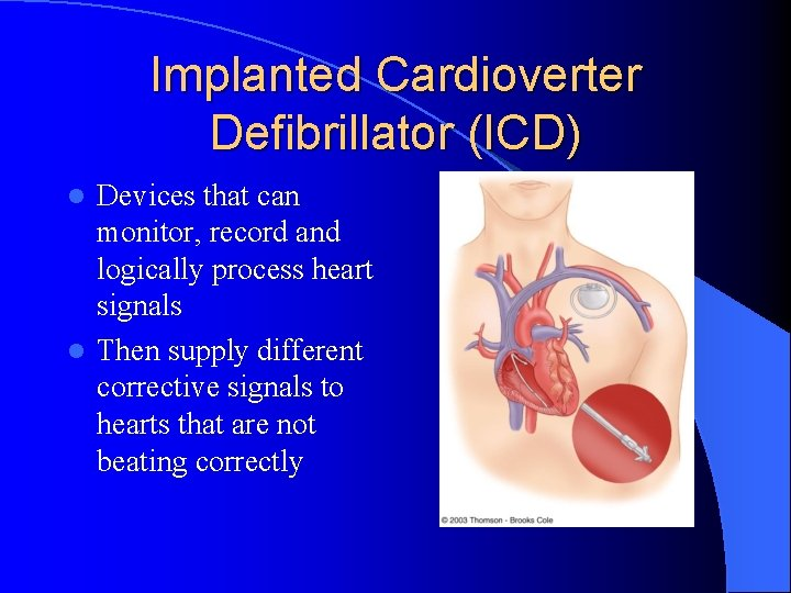 Implanted Cardioverter Defibrillator (ICD) Devices that can monitor, record and logically process heart signals