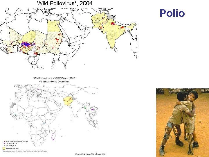 Polio 32