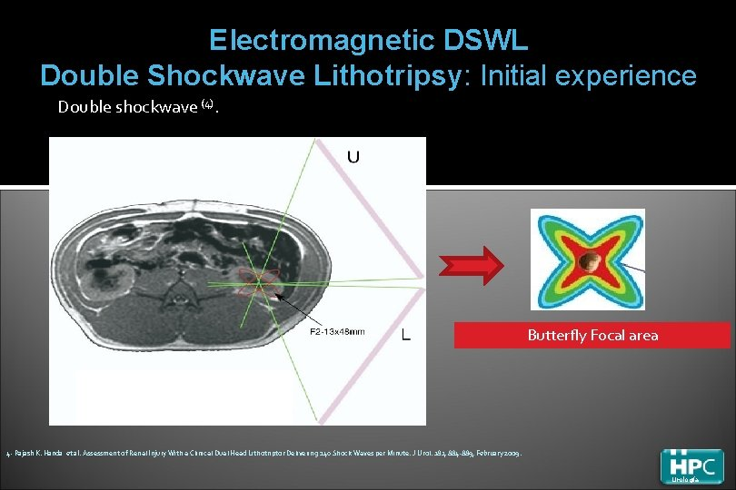 Electromagnetic DSWL Double Shockwave Lithotripsy: Initial experience Double shockwave (4). Butterfly Focal area 4