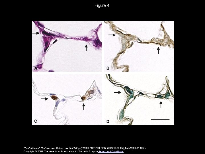 Figure 4 The Journal of Thoracic and Cardiovascular Surgery 2009 1371499 -1507 DOI: (10.