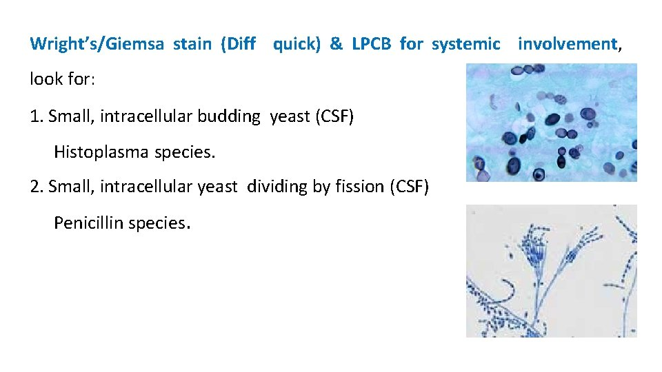 Wright's/Giemsa stain (Diff quick) & LPCB for systemic involvement, look for: 1. Small, intracellular